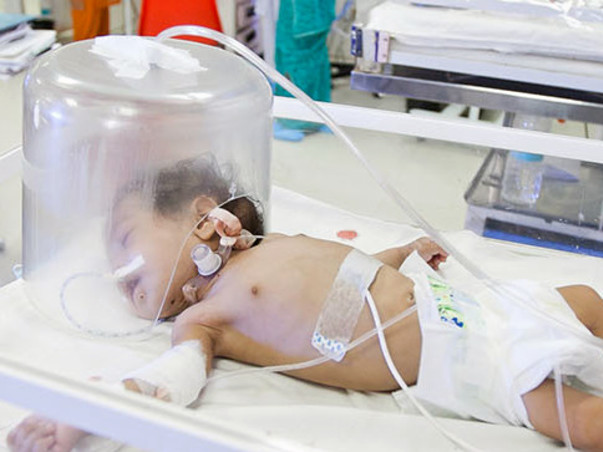 Help Little Girish 1 year old child he need Urgent Liver Transplant