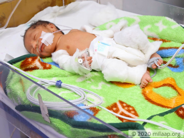 Help Ekta's Preterm Baby Recover