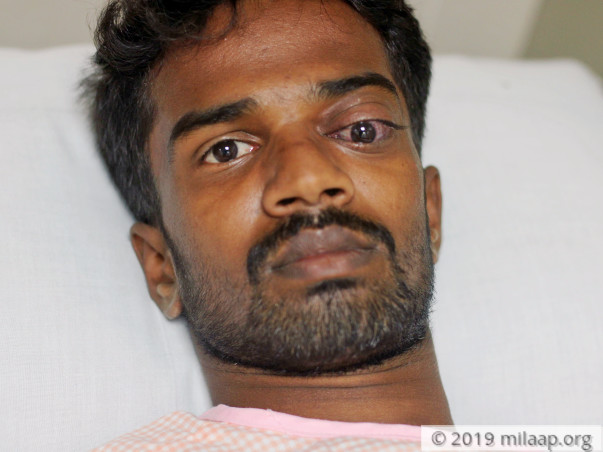 23-YO Suffering From Eye Damage After Cow Attacked Him Needs Help