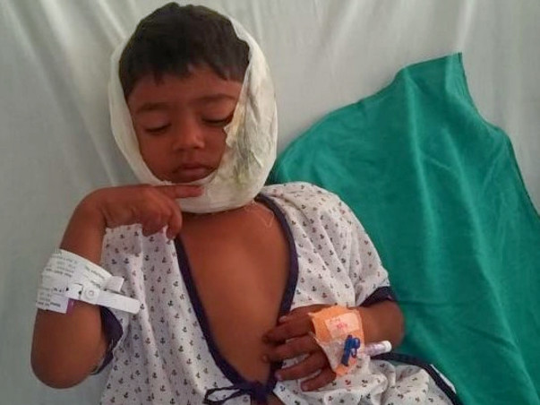 Support 5 year old Sumit Yadav recover from major road accident