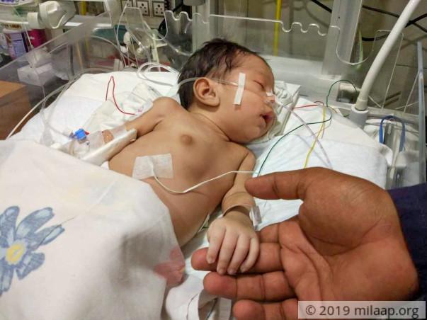Farmer's 1-Month-Old Baby Needs A Life-Saving Heart Surgery Tomorrow