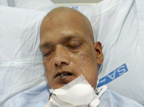 Help Sagar To Fight Cancer