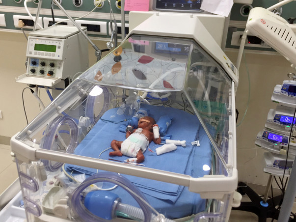 Help my baby girl in NICU - 24 weeks Extreme PreMaturity