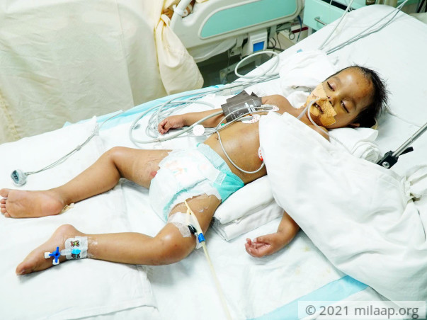 Help Alex Verma Recover From Septic Shock