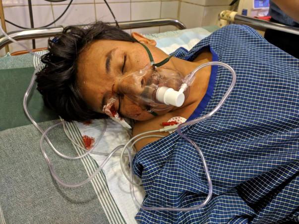Help Reginold Masih for his treatment.