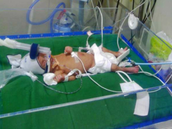 "Baby Mehek-born at 32 weeks gestation pleads : ""HELP ME FIGHT TO LIVE"""