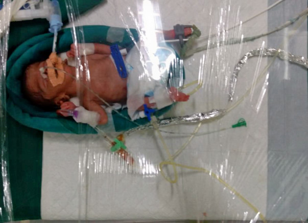 Born Just 6 Months Into Pregnancy, This Baby Needs Your Help To Live
