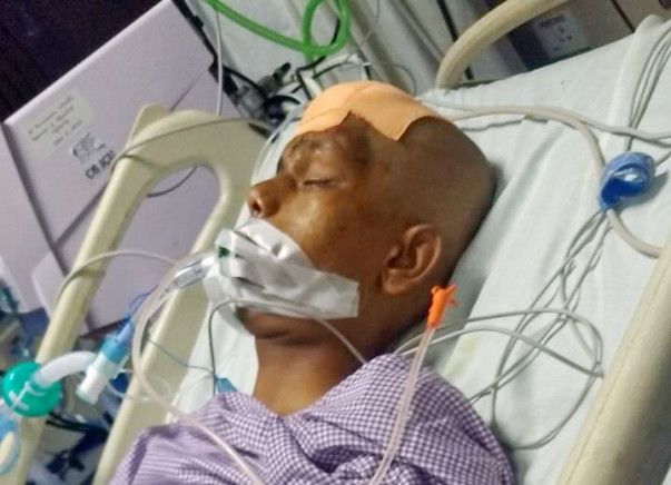 Head injured - complicated operation in head