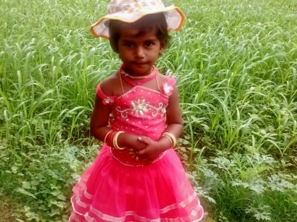 Help Baby Shamita Get Cochlear Implant Surgery.