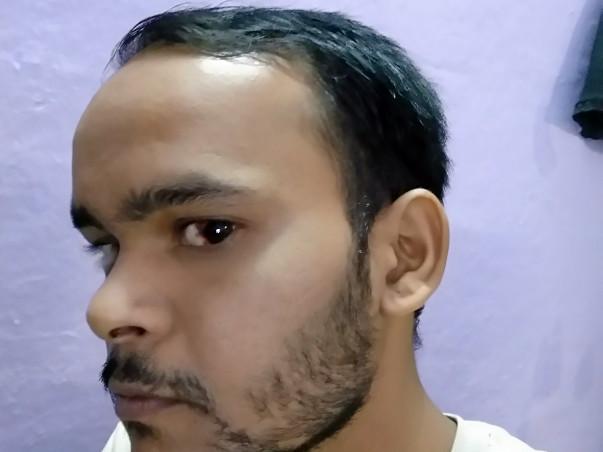 Medical help for Swapnil Maladkar Budd Chiari Syndrome