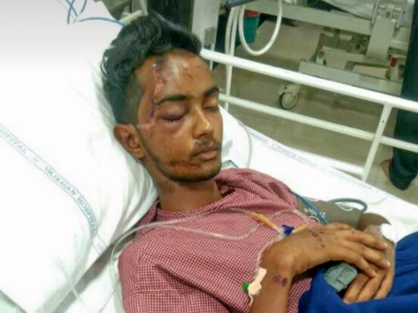 Need Money For A Friend's Skull fracture Operation
