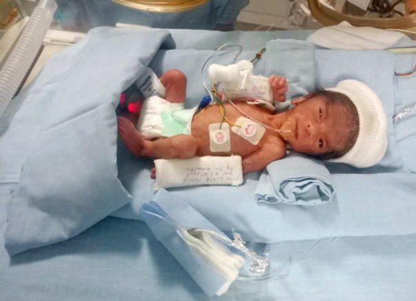 These Parents Are Struggling To Save Their Extremely Premature Baby