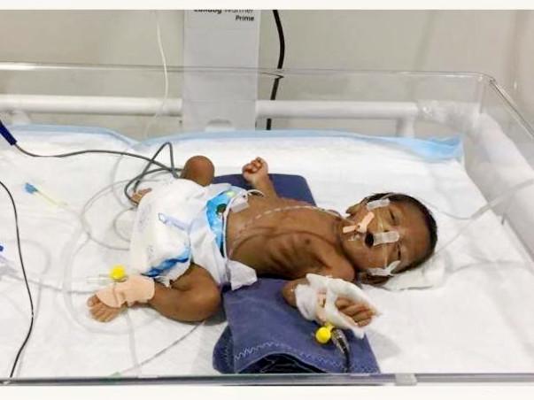 Help Premature Baby Of Ushakumari
