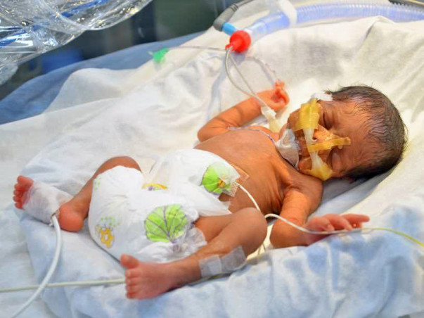Twins Born After 26 Years Of Marriage Are Now Fighting To Survive