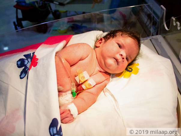 15-day-old baby with hole in the back needs urgent surgery