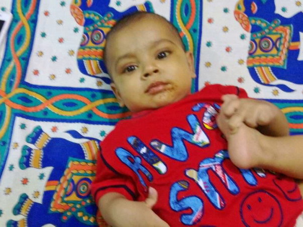 Aditya is not even a year old and he needs a liver transplant