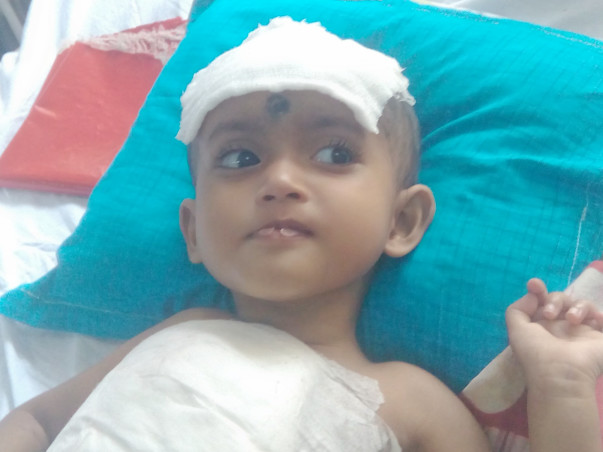Help Our Baby Undergo Brain Operation