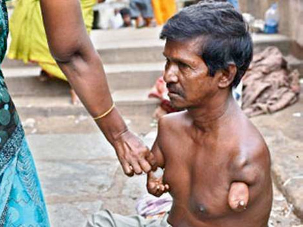Feed the poor beggars and disabled destitutes
