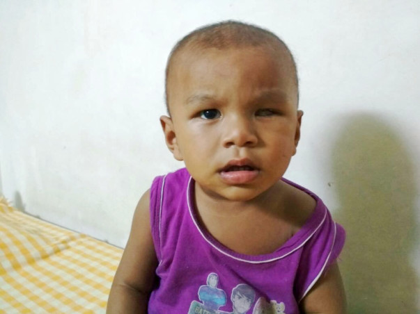 1-year-old Dhanjit Has Eye Cancer And Needs Our Help For Treatment