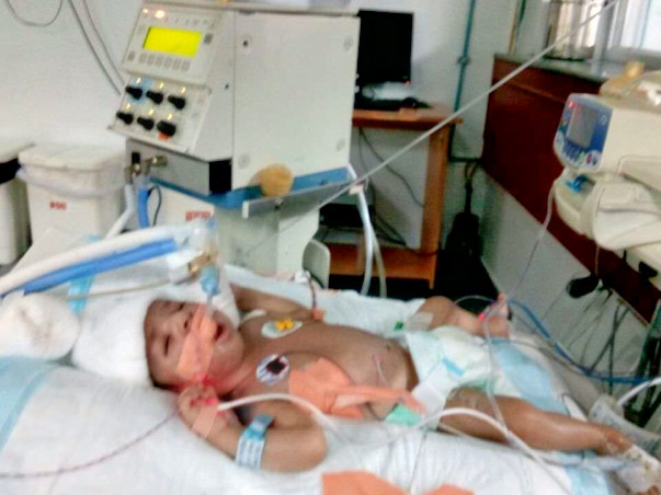 Help Baby of Chaya Fight a Lung Defect