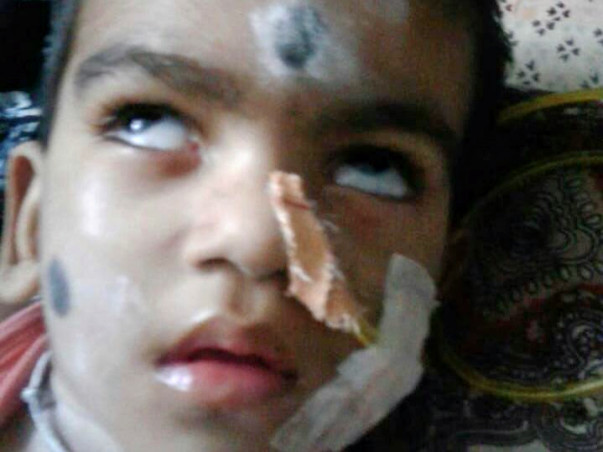 Help 3-Year-Old Sai Battles In The Hospital