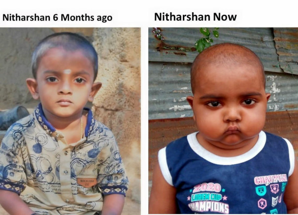 Nitharshan, A 4 yr old future doctor; support for Stem Cell Transplant
