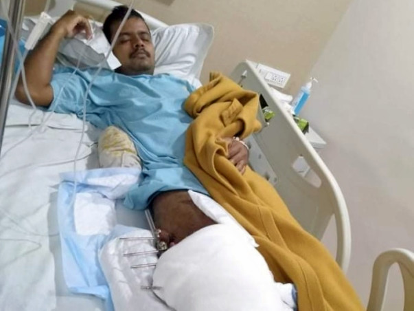 Support Santana Das Fight From Leg Transplant