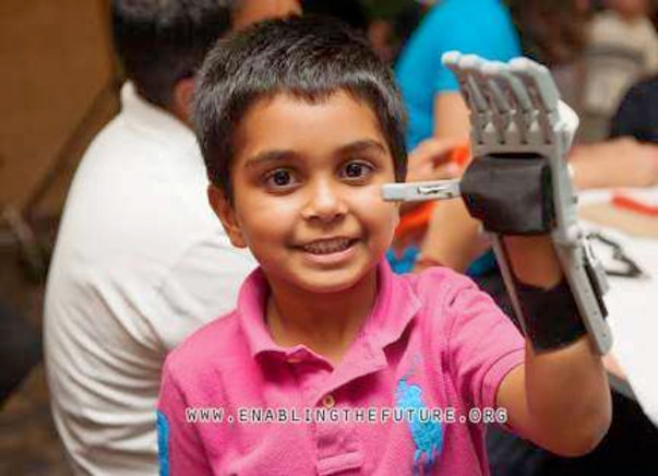 Lend a Hand to amputees - 3D printed Prosthetics
