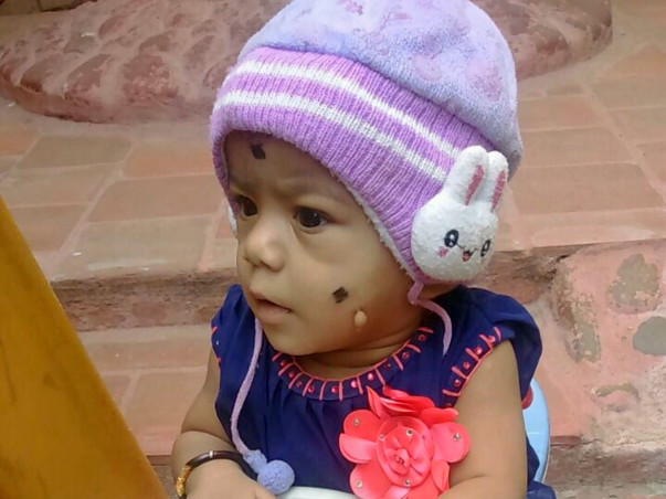 Save 11-Month-Old Sarvika Fight Against Neuroblastoma