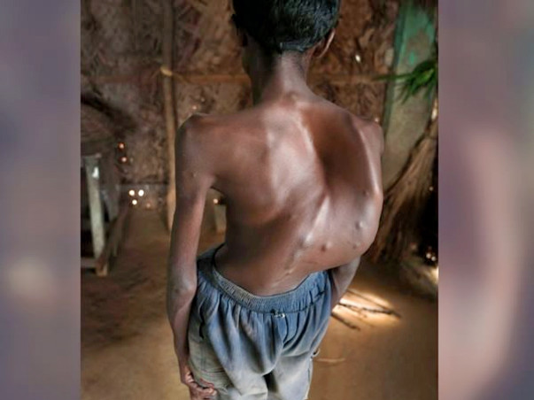This 20-year-old Man Hasn't Slept For Years Because Of His Bent Spine