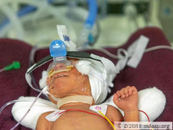 Help Srinivas and Eshwaramma save their new born baby boy