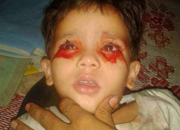 Toddler, Three, Baffles Doctors In India With Mystery Condition