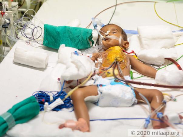 Help Baby of Mallesh Fight Congenital Heart Disease