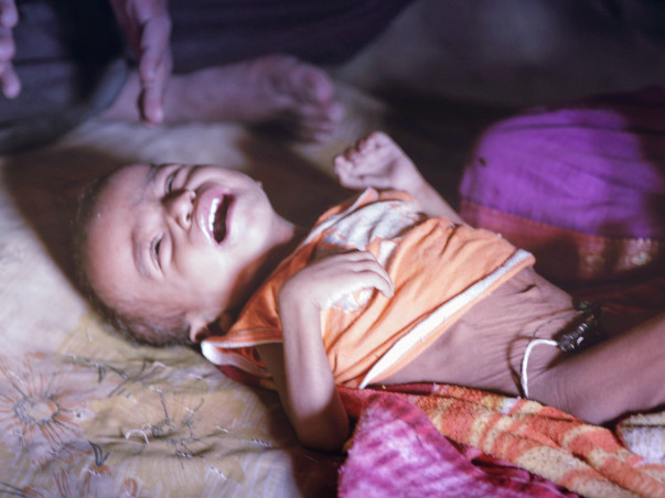 Help Melghat Childrens Fight Malnutrition