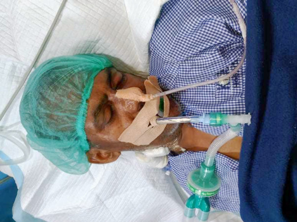 Help My 53 Yr Old Dad Who Is Suffering From Brain Hemorrhage