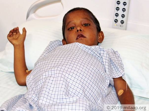 Sudarshan Kallur needs your help to undergo Liver transplant