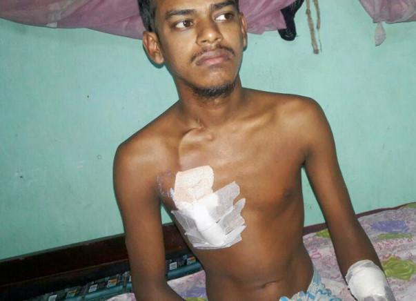 Help Abdur for Kidney Transplant