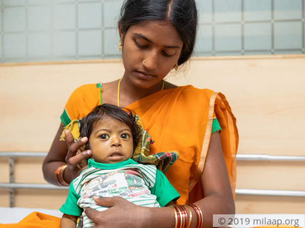 Baby of Sarojini Biliary Atresia with Chronic Liver Disease
