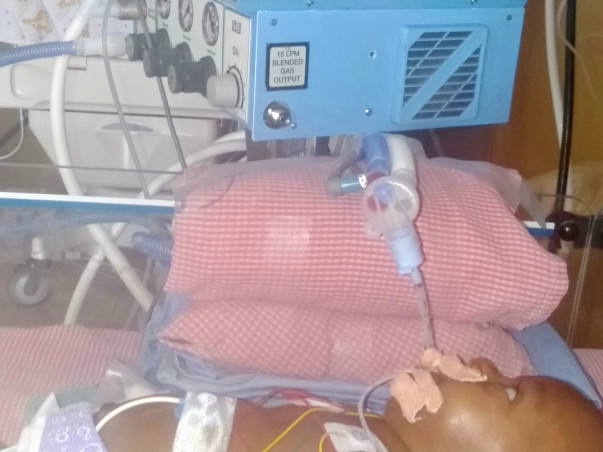 Please help for my son's surgery...