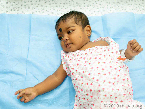 7-month-old Suffocates Due To Swollen Tummy From Liver Disease