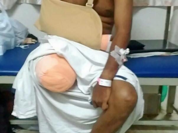 Help Kiran Raise Funds For An Artificial Limb