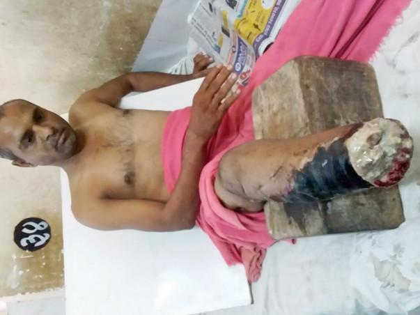 Help Sattappa Get A Prosthetic Leg