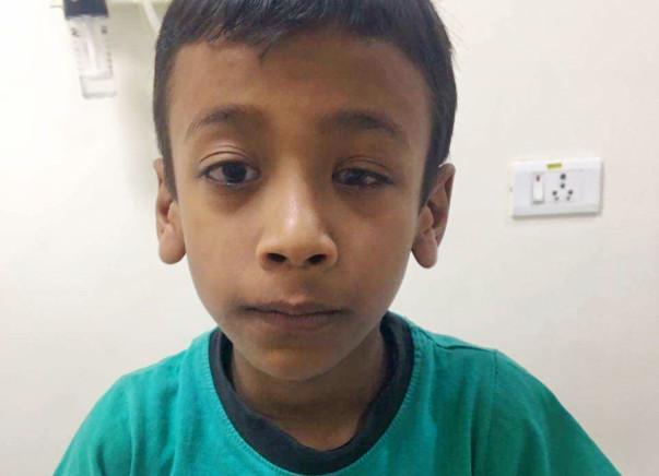 Help master Krishna get cochlear implant