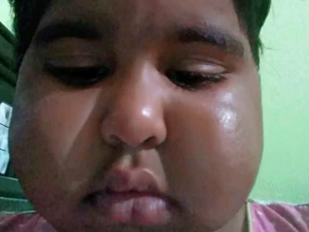 Help my Daughter  Srikruthi survive MOG Neurology disease