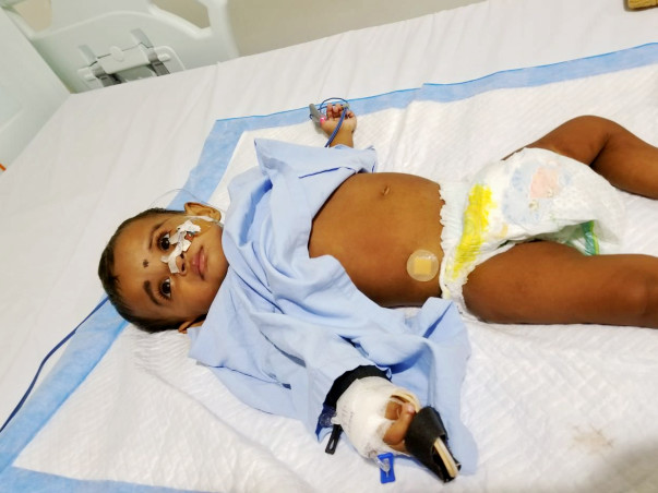 1-year-old Vyga with a swollen stomach needs help