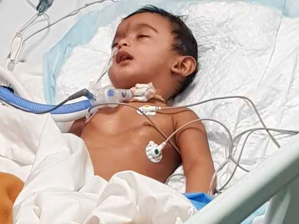 9 Months Old Baby Of Shruthi Needs Your Help Fight Pierre Robin Sequence