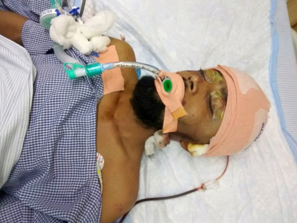 Help Rashmi Ranjan Nayak Recover From His Accident