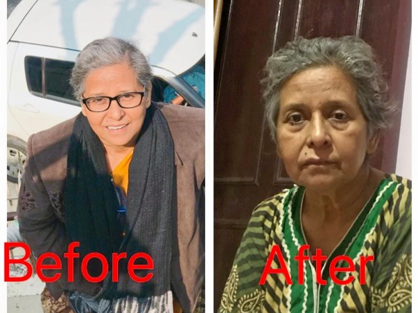 Help Basant Shobha For Fight With Hodgkin's Lymphadinitis Cancer