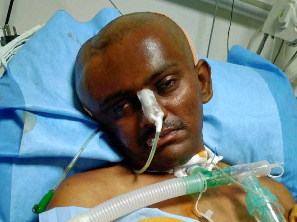 Help Mahesh Recover From A major Accident