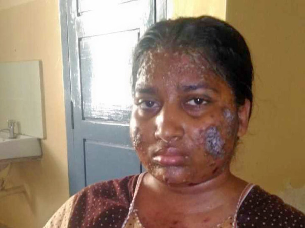 Help Ms.Pavithra recover from a rare Skin disorder Pemphigus Vulgaris